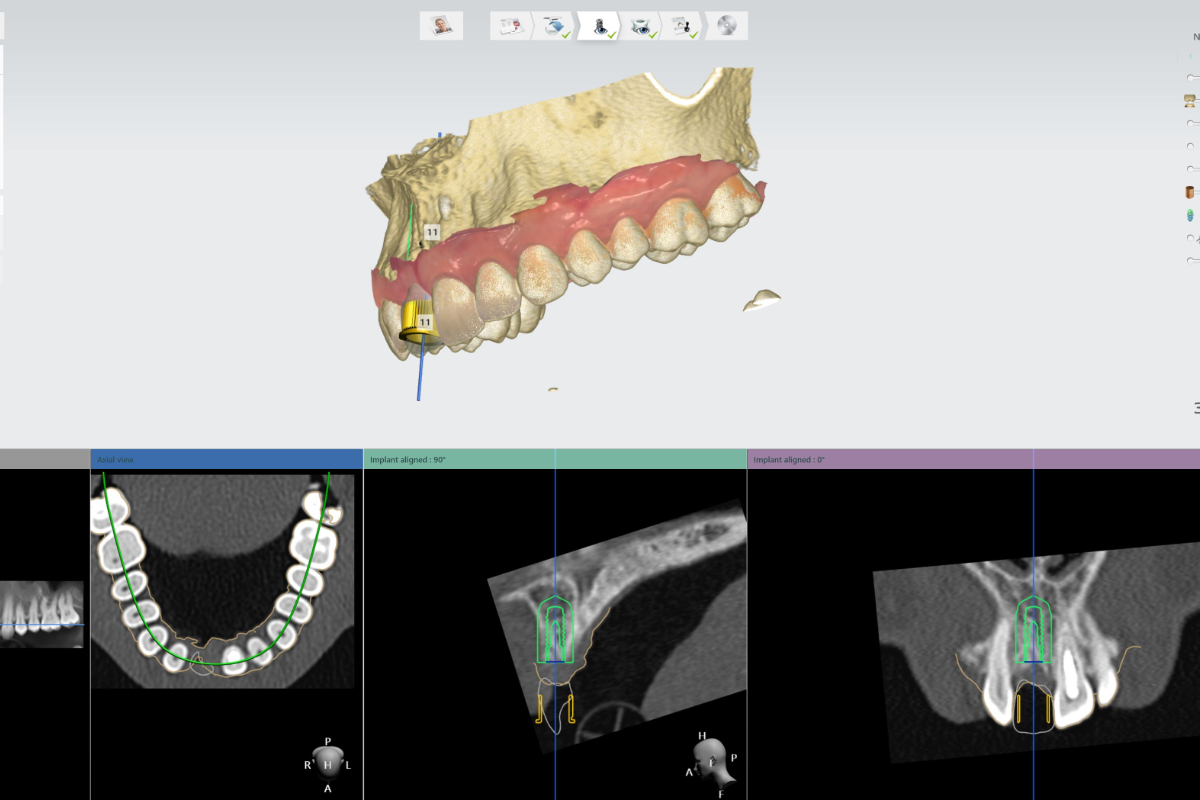 https://www.omnidental.com.au/wp-content/uploads/2020/08/implant-planning-1200.jpg